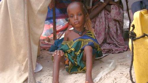 A fome no Chifre da África é causada pela seca e a guerra civil que, há décadas, devasta aquela região do continente