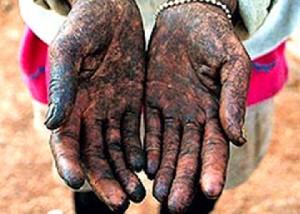Até 50 mil pessoas podem exercer atividades em condições análogas à escravidão